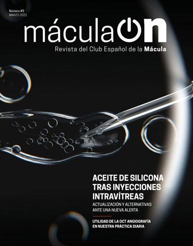 macula ON 03